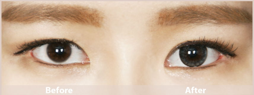 gray circle lenses before and after